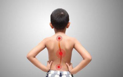 Искривление позвоночника у ребенка